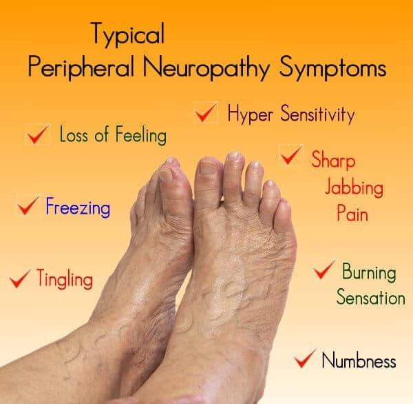 A list of common symptoms associated with Peripheral Neuropathy