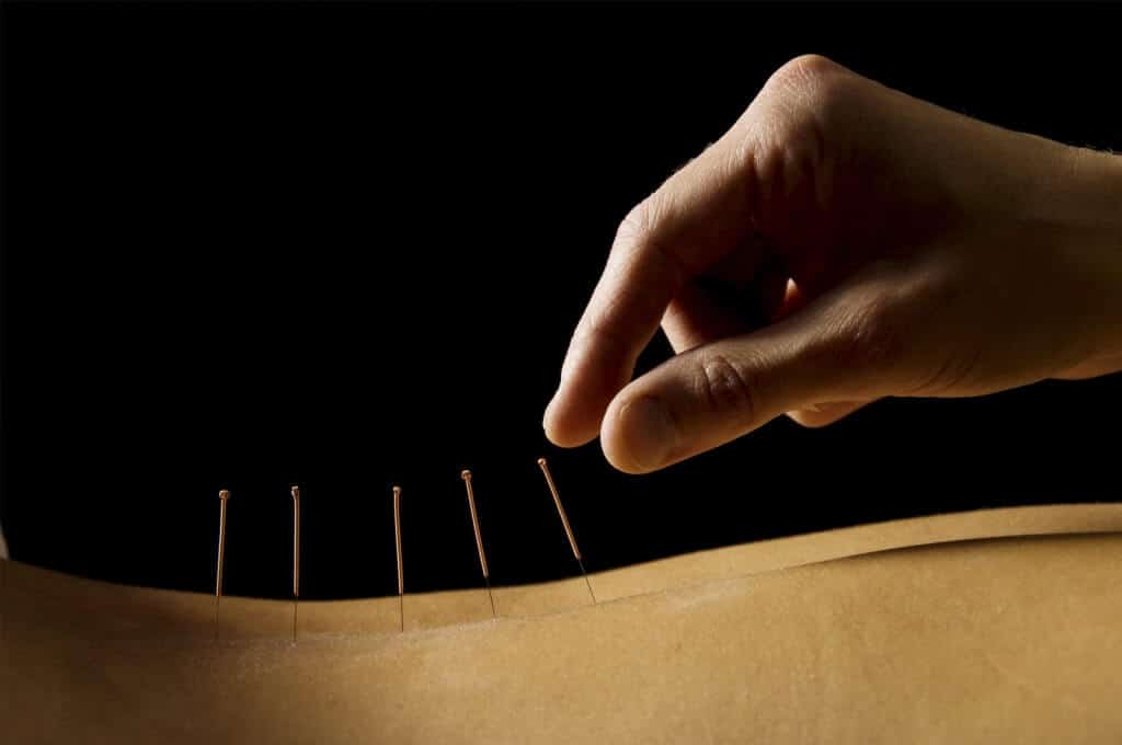 Acupuncture treatment for neuropathy