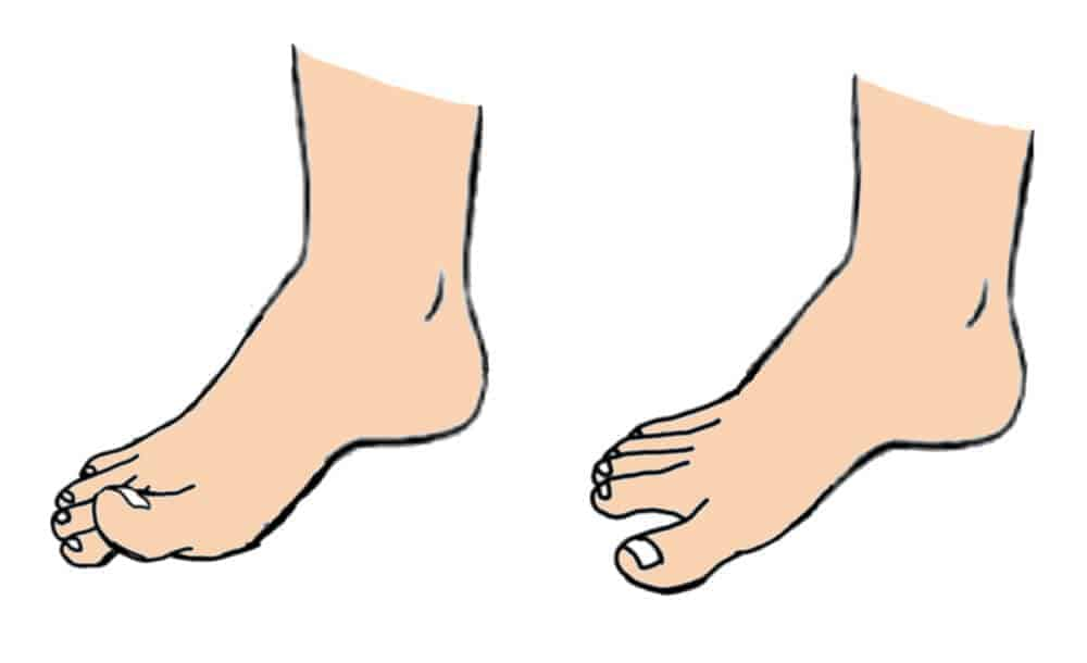 Toe Tapping neuropathy exercise